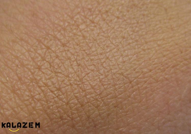 ترمیم بافت پوست دست و پا